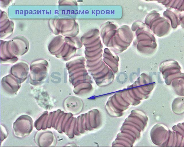 Признаки заболевания человека паразита